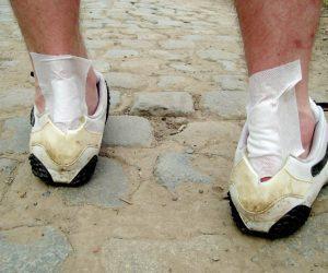Overview of heel pain